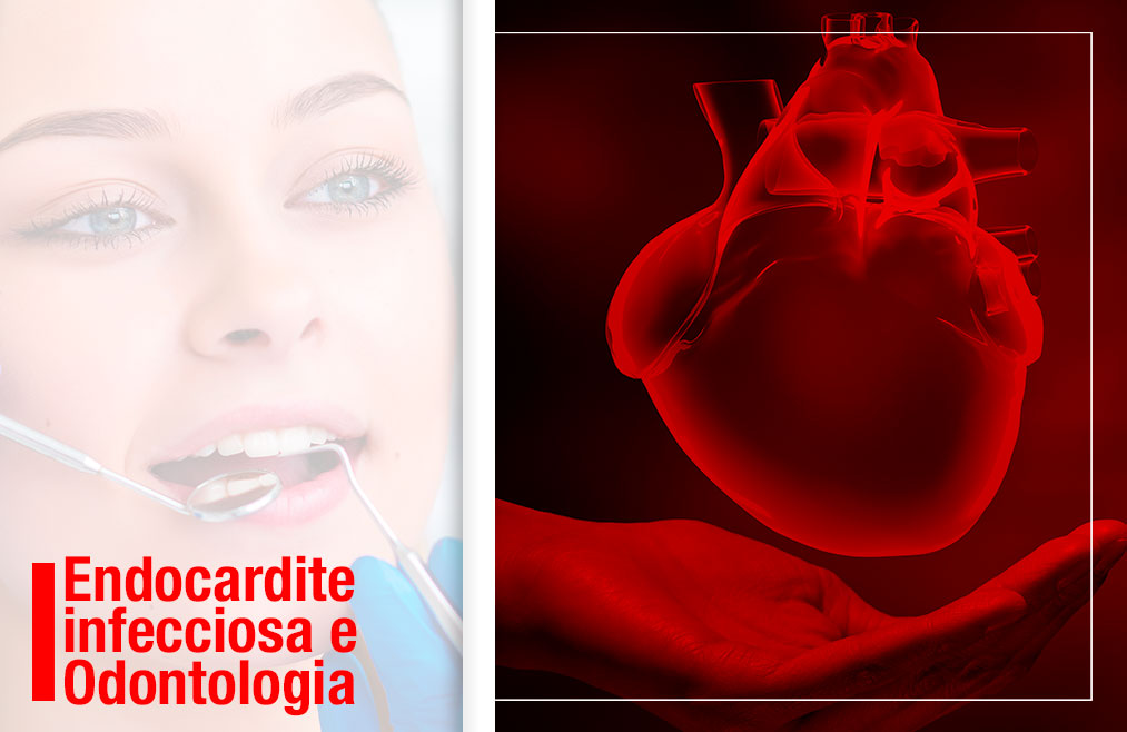 Endocardite infecciosa e Odontologia
