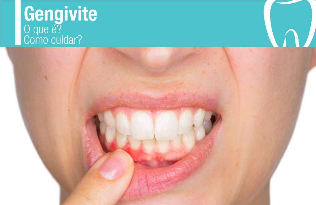 Oque é a gengivite e como prevenir?